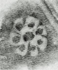 Image Description for http://tudigit.ulb.tu-darmstadt.de/esp/Inc_IV_120/u_2.jpg